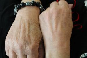 Hænder efter 6 ugers behandling hv 3 dag m HomeCare_low